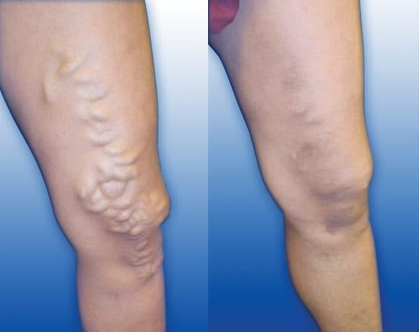 before and after varicose veins